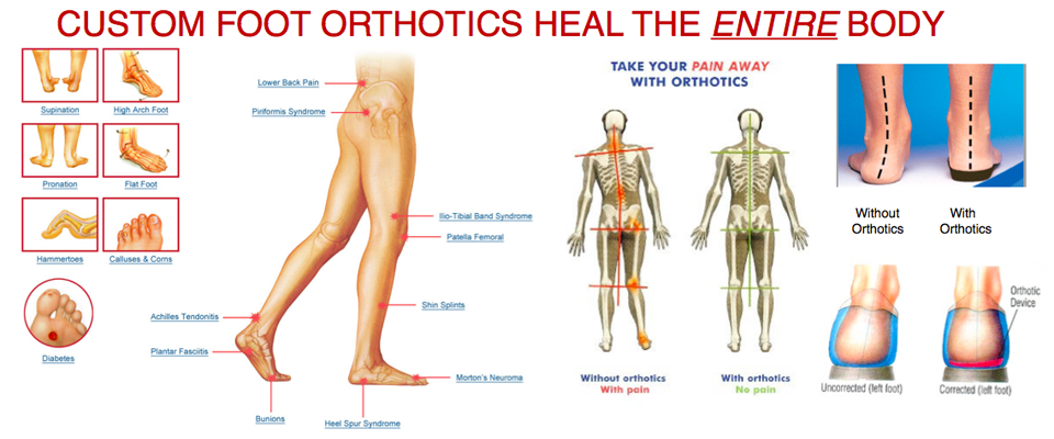 foot_orthotics